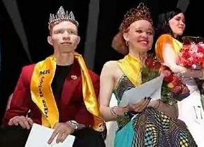 Albinism Pageant